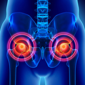 hip replacement recall
